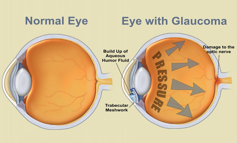 Action Health Glaucoma